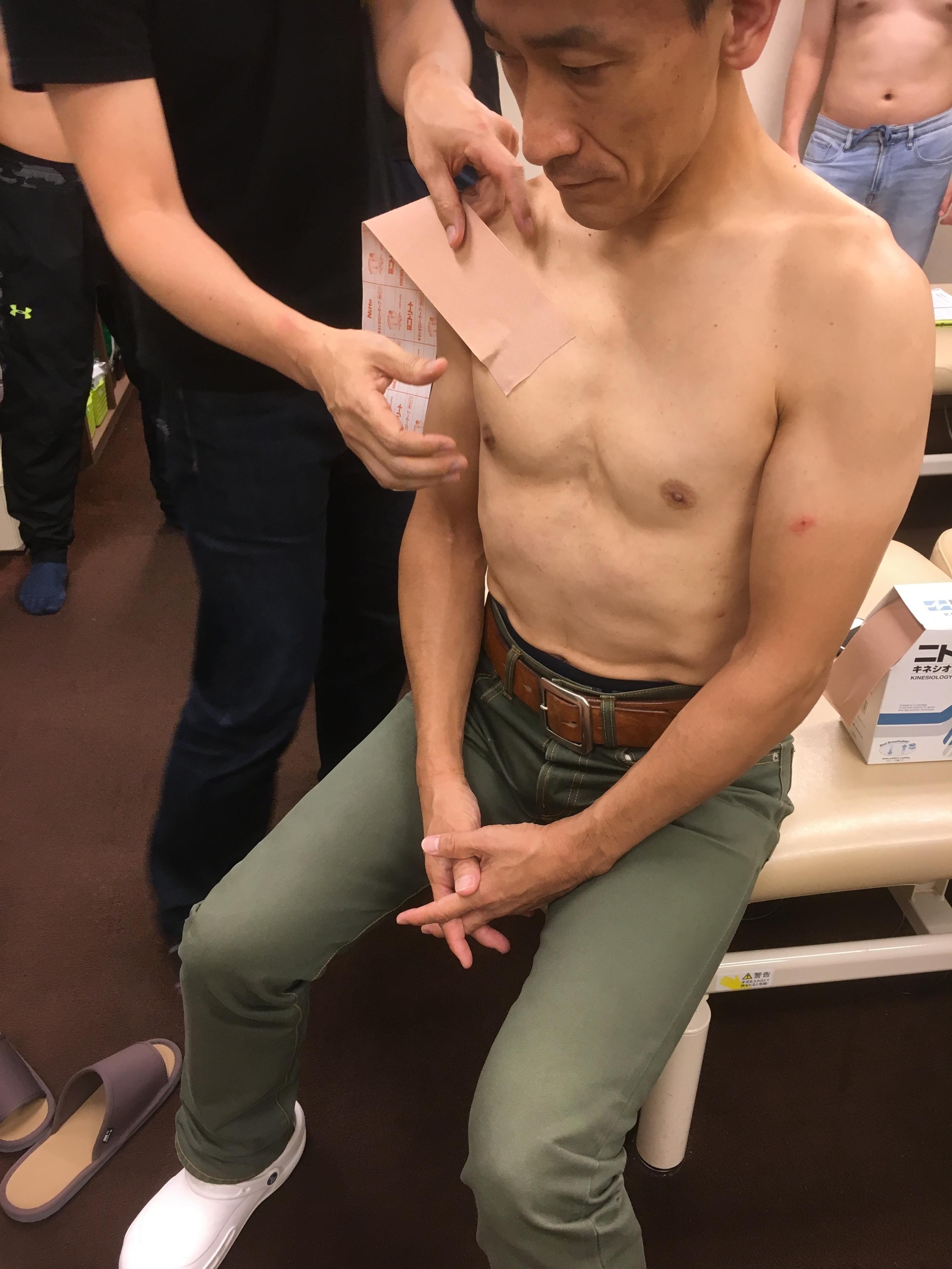 肩関節のテーピング