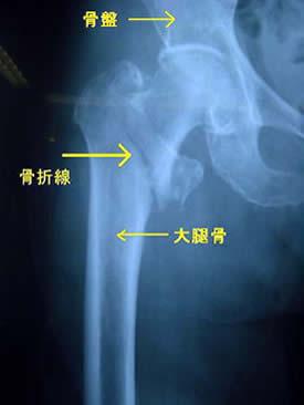 ... 自転車で転倒し大腿骨を骨折